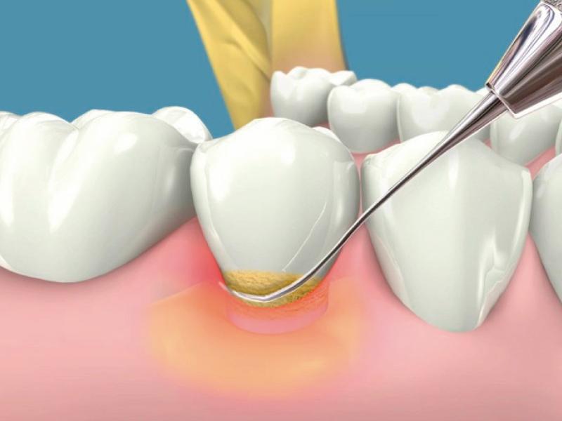 tratamiento en periodoncia