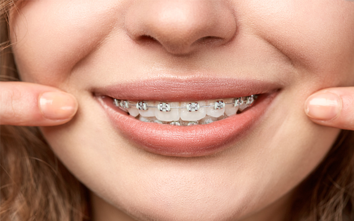 brackets ortodoncia
